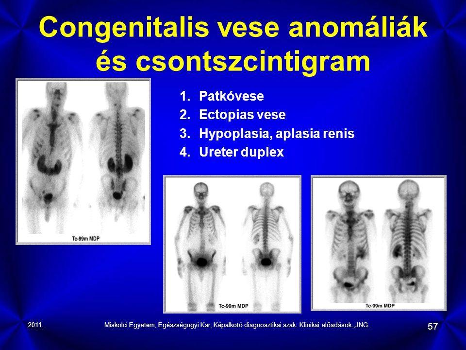 Congenitalis vese anomáliák és csontszcintigram