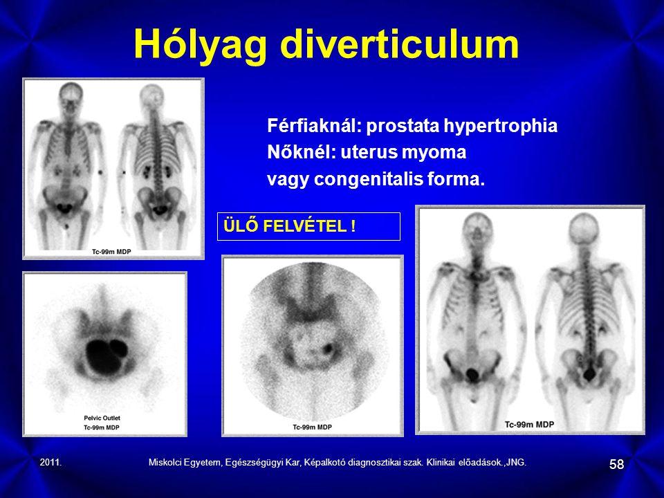 Hólyag diverticulum Férfiaknál: prostata hypertrophia