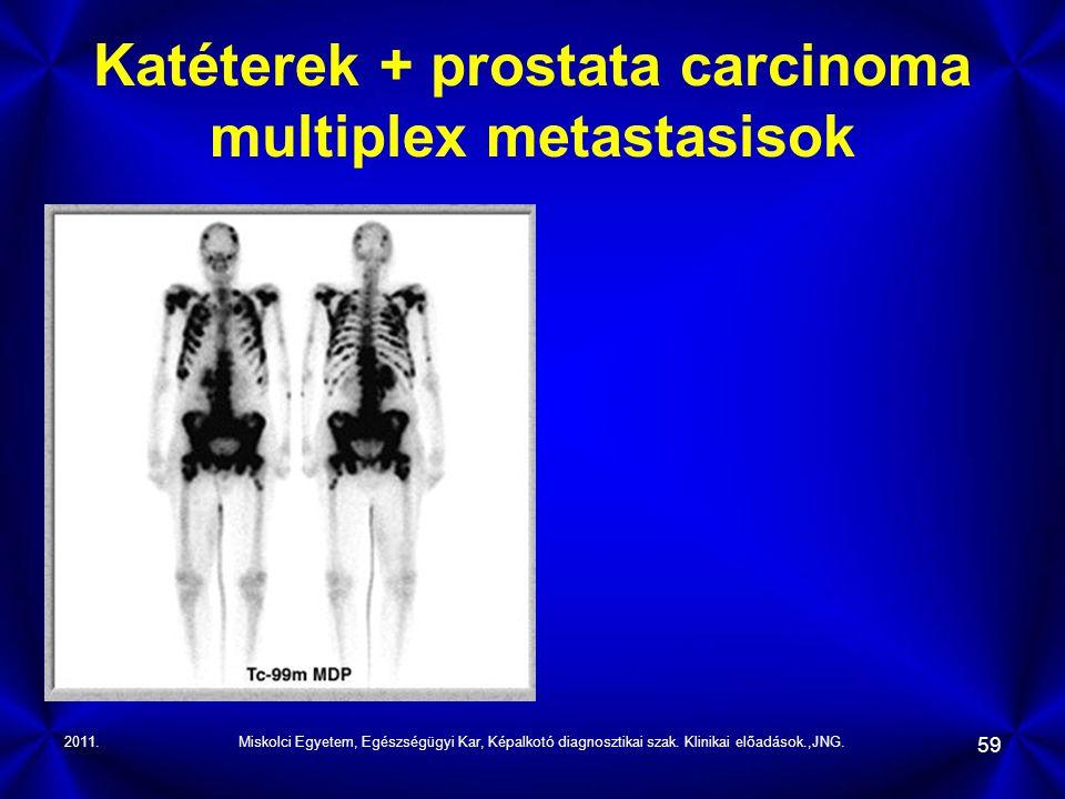Katéterek + prostata carcinoma multiplex metastasisok