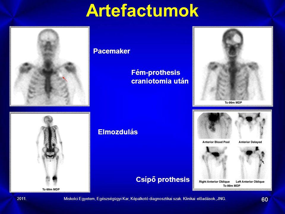 Artefactumok Pacemaker Fém-prothesis craniotomia után Elmozdulás
