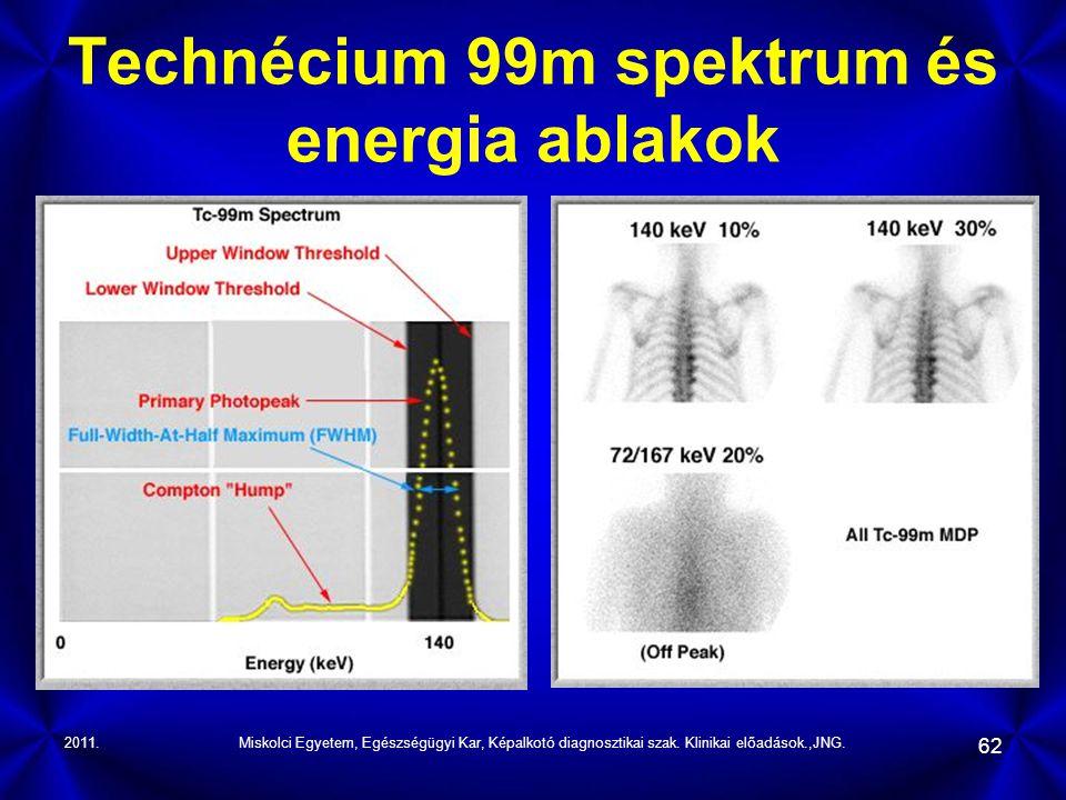Technécium 99m spektrum és energia ablakok