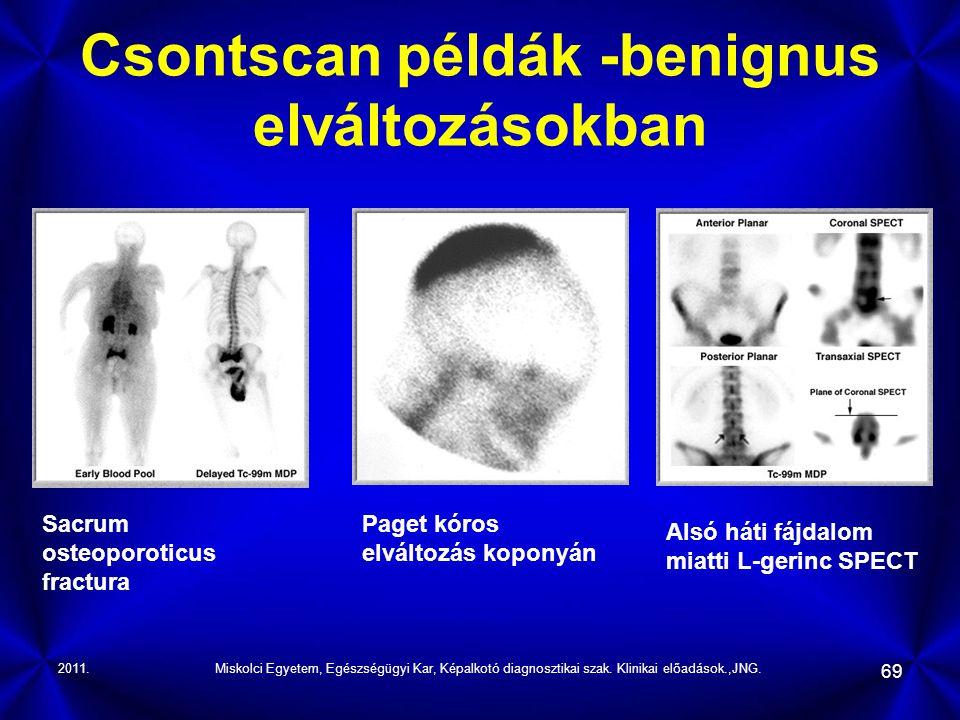 Csontscan példák -benignus elváltozásokban