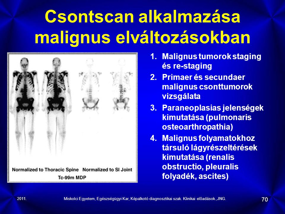 Csontscan alkalmazása malignus elváltozásokban
