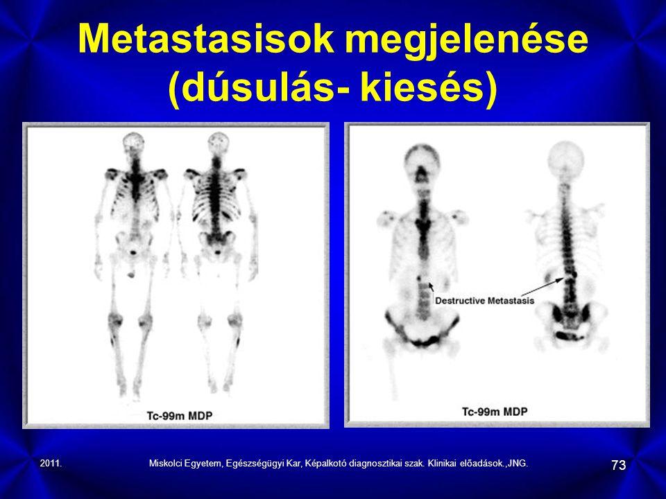 Metastasisok megjelenése (dúsulás- kiesés)