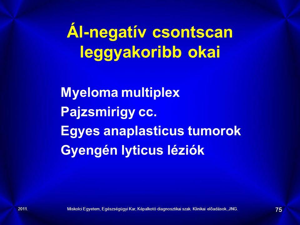 Ál-negatív csontscan leggyakoribb okai
