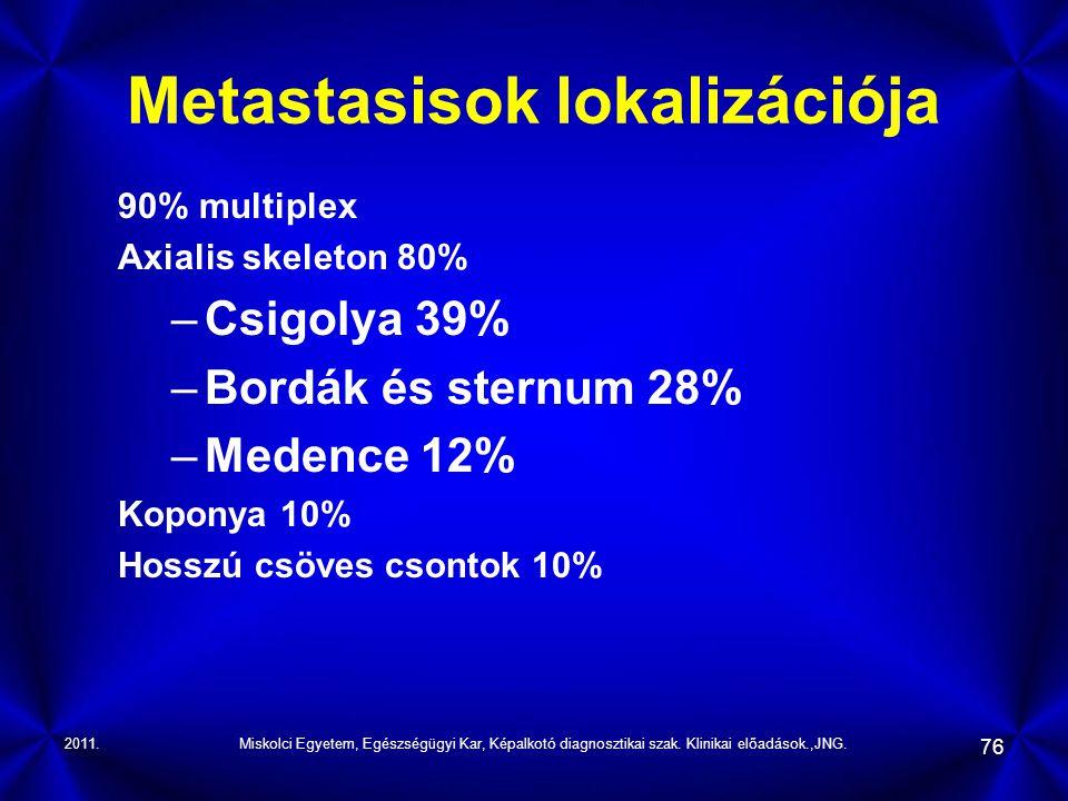 Metastasisok lokalizációja