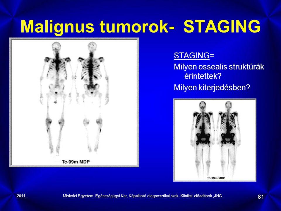 Malignus tumorok- STAGING