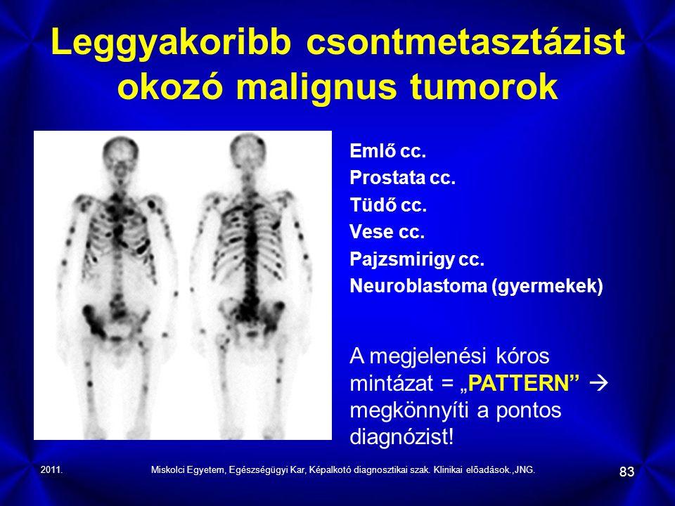 Leggyakoribb csontmetasztázist okozó malignus tumorok