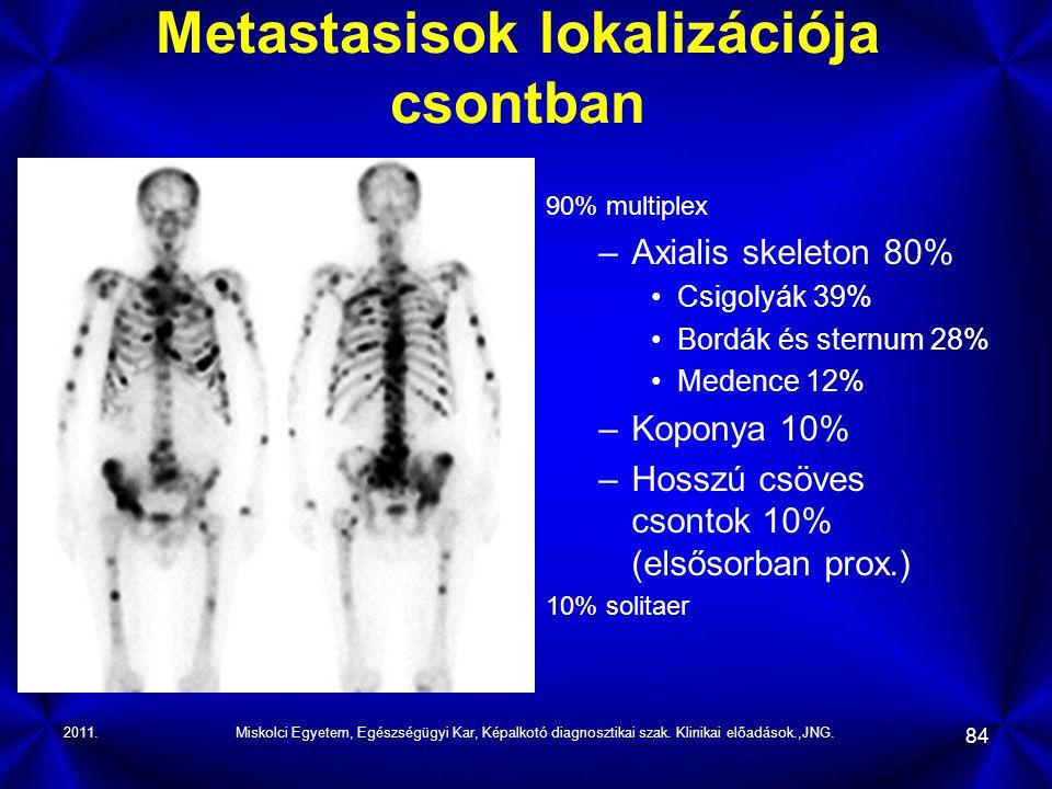 Metastasisok lokalizációja csontban