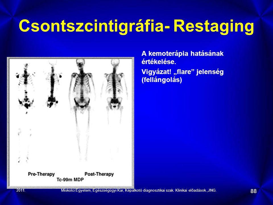 Csontszcintigráfia- Restaging