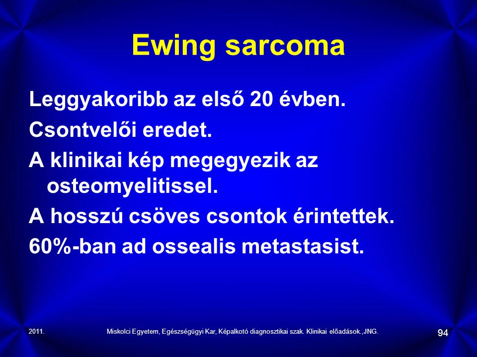 Ewing sarcoma Leggyakoribb az első 20 évben. Csontvelői eredet.