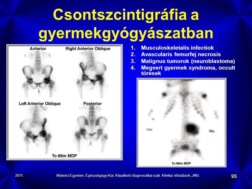 Csontszcintigráfia a gyermekgyógyászatban