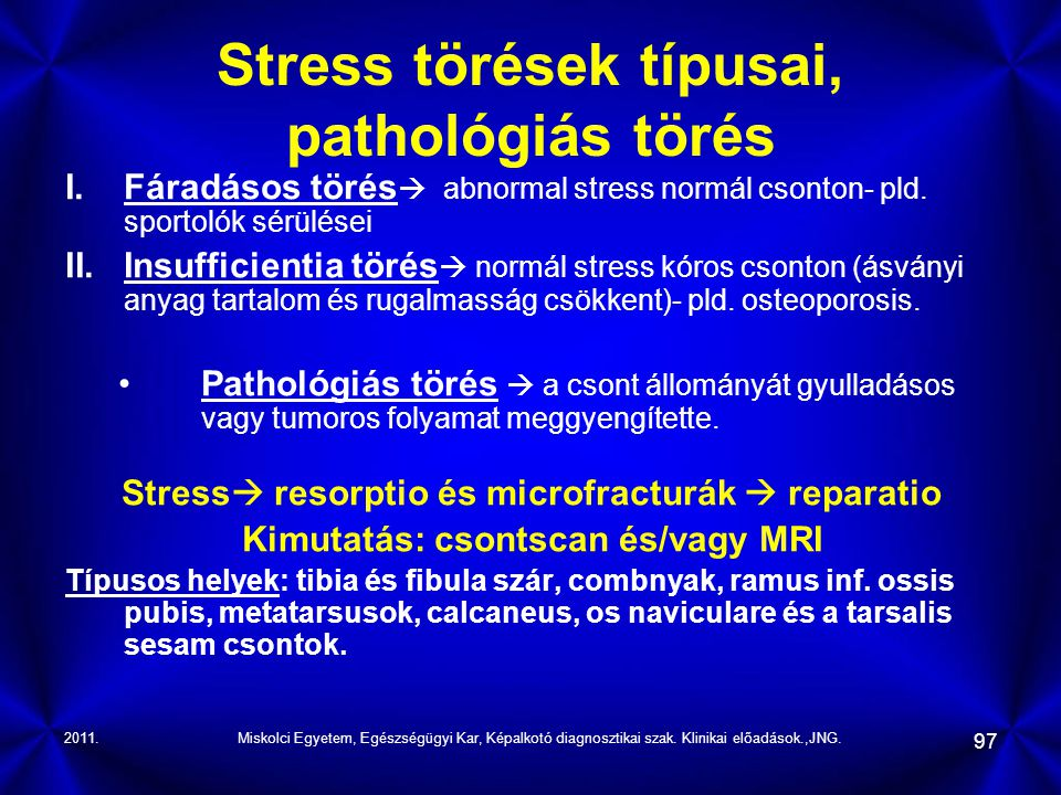 Stress törések típusai, pathológiás törés