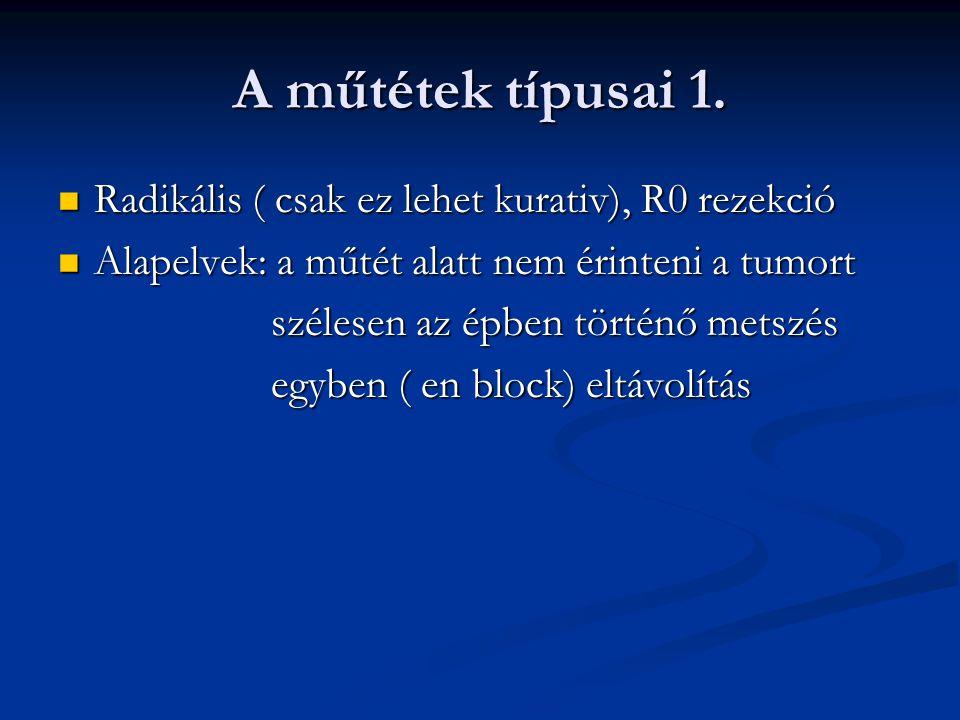 A műtétek típusai 1. Radikális ( csak ez lehet kurativ), R0 rezekció