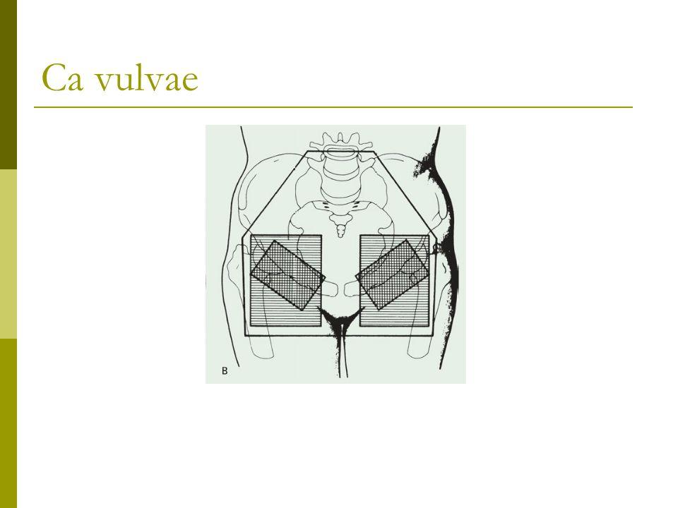 Ca vulvae 1702