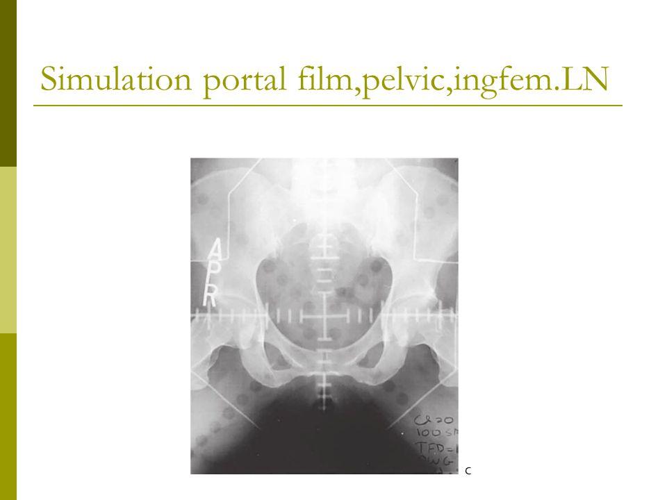 Simulation portal film,pelvic,ingfem.LN