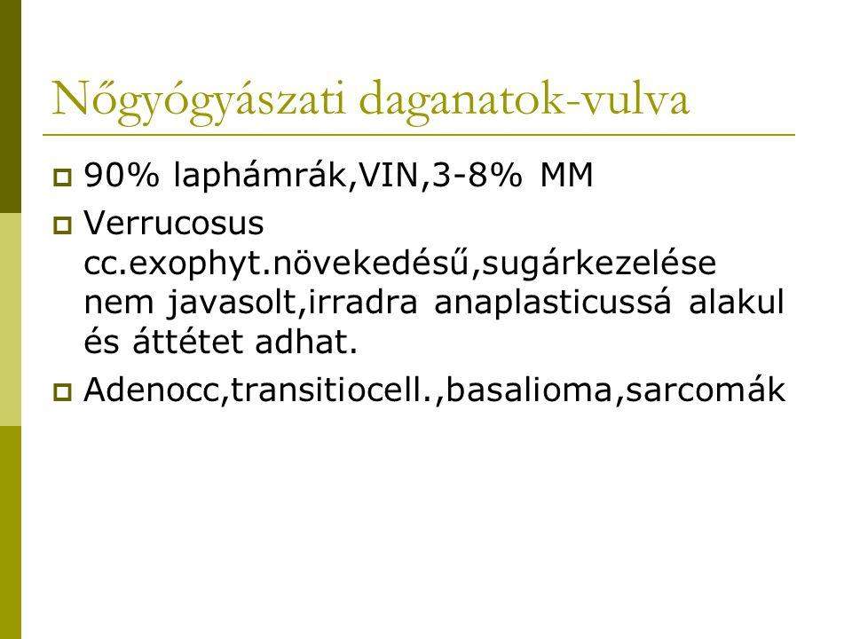 Nőgyógyászati daganatok-vulva