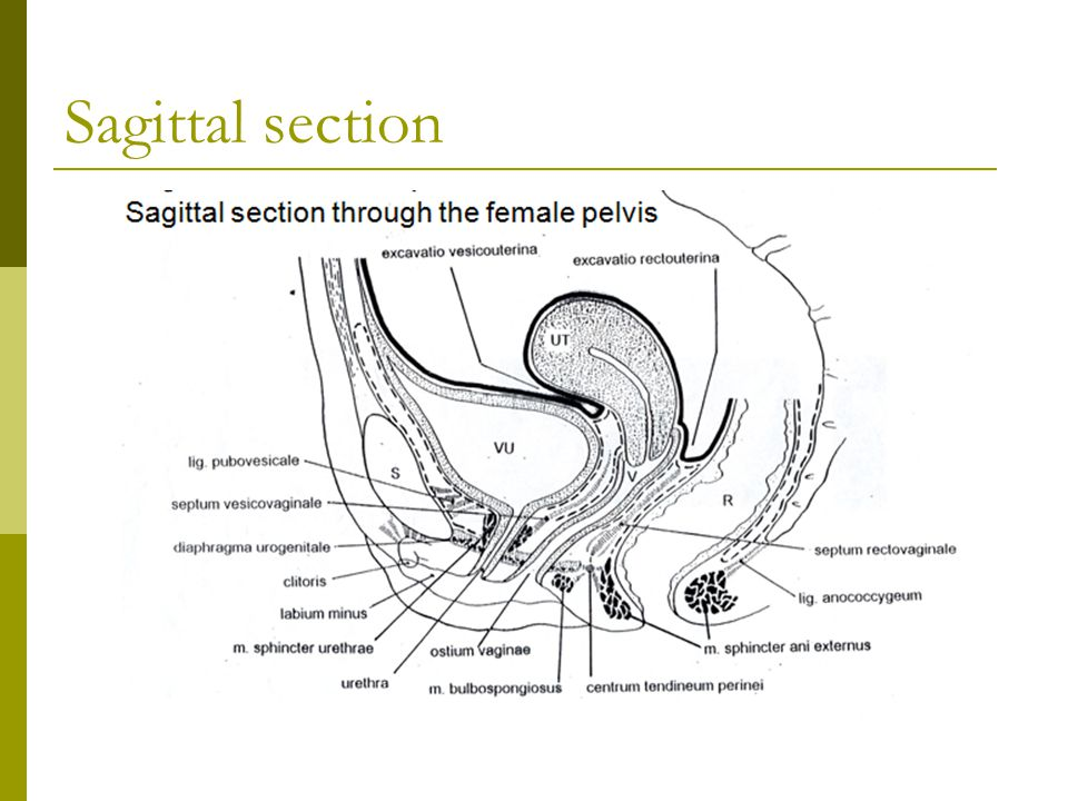 Sagittal section