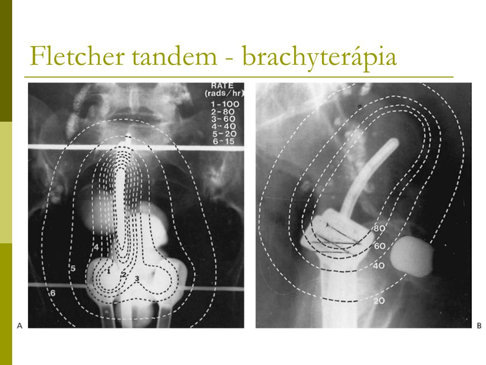 Fletcher tandem - brachyterápia