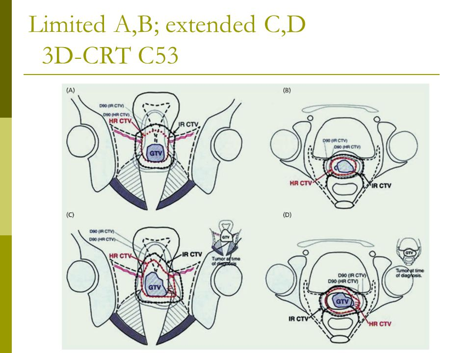 Limited A,B; extended C,D 3D-CRT C53