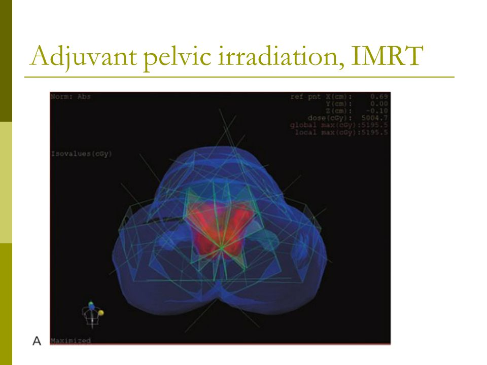 Adjuvant pelvic irradiation, IMRT