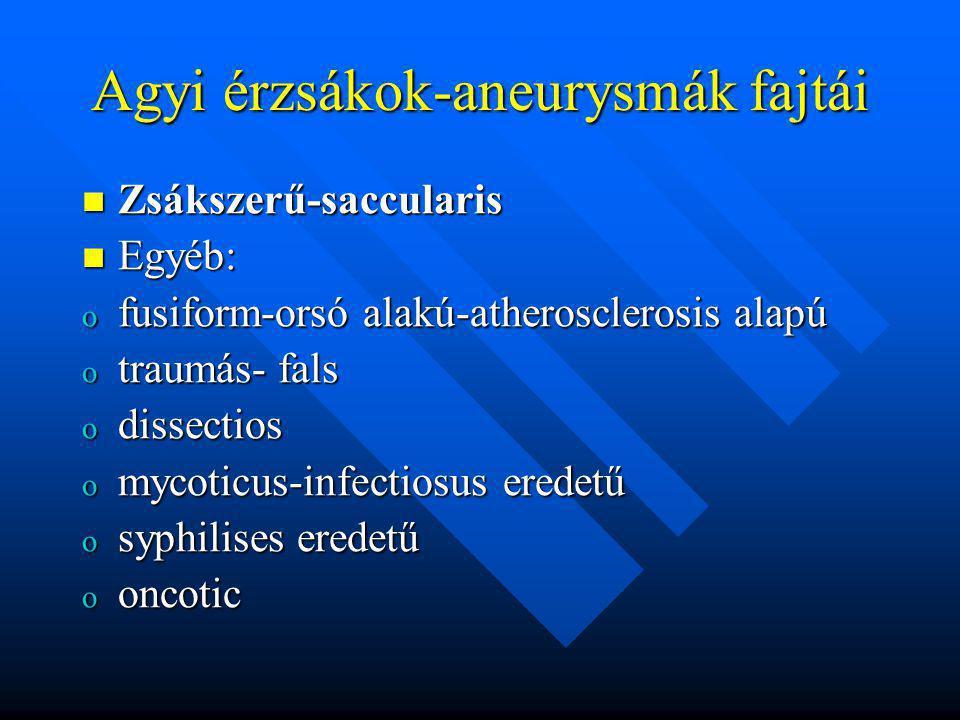Agyi érzsákok-aneurysmák fajtái