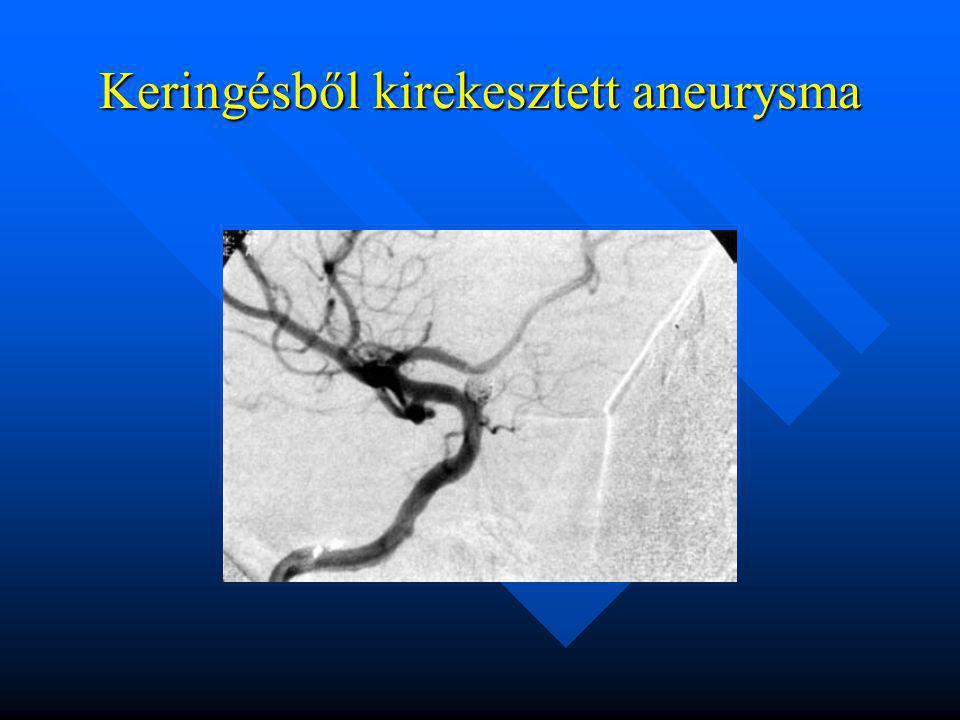 Keringésből kirekesztett aneurysma