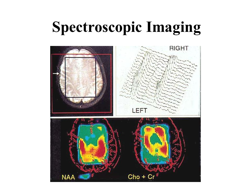 Spectroscopic Imaging