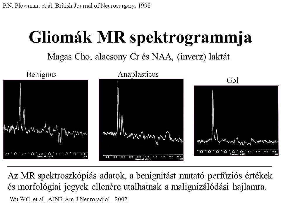 Gliomák MR spektrogrammja