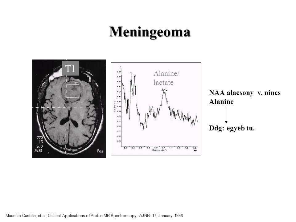 Meningeoma T1 Alanine/ lactate NAA alacsony v. nincs Alanine
