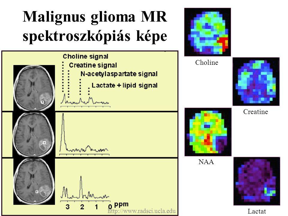 Malignus glioma MR spektroszkópiás képe