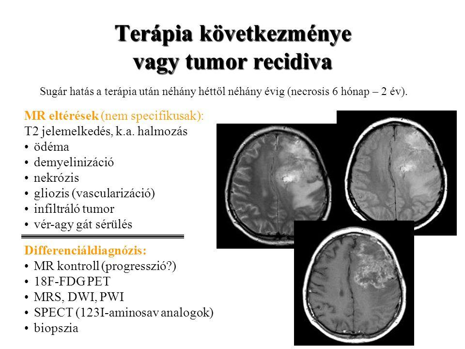 Terápia következménye vagy tumor recidiva