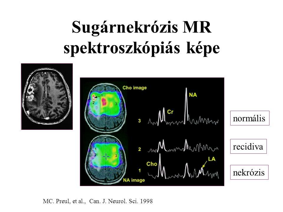 Sugárnekrózis MR spektroszkópiás képe