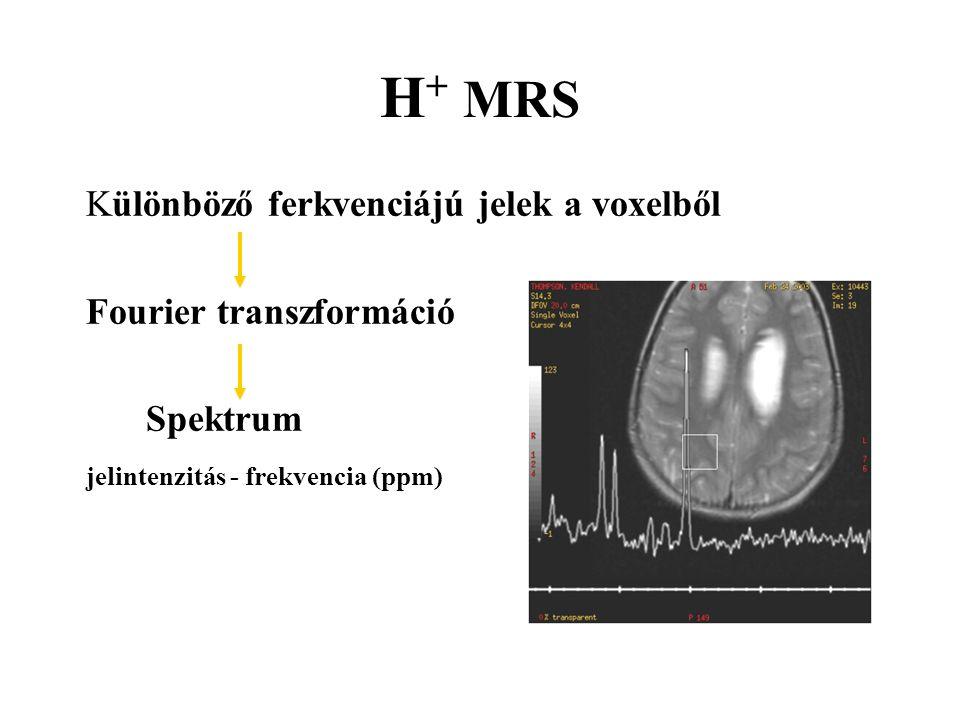 H+ MRS Különböző ferkvenciájú jelek a voxelből Fourier transzformáció