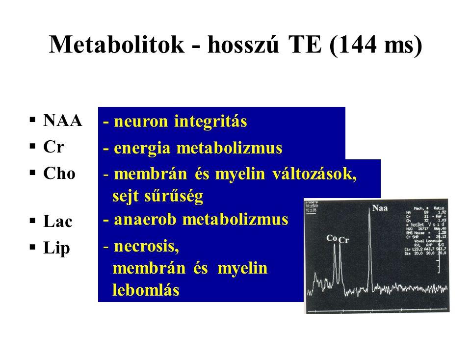 Metabolitok - hosszú TE (144 ms)