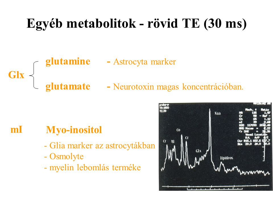 Egyéb metabolitok - rövid TE (30 ms)