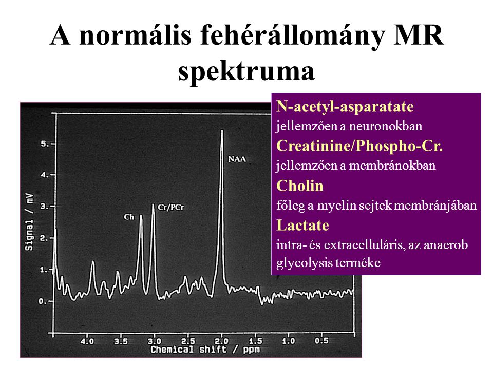 A normális fehérállomány MR spektruma