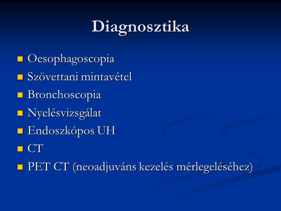 Diagnosztika Oesophagoscopia Szövettani mintavétel Bronchoscopia