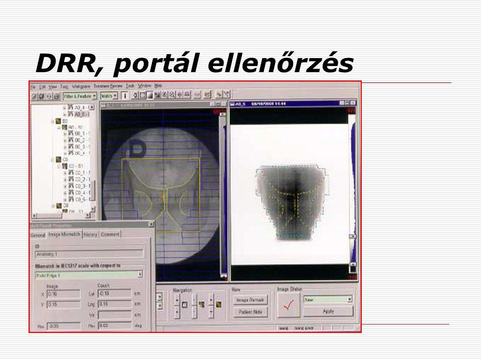 DRR, portál ellenőrzés