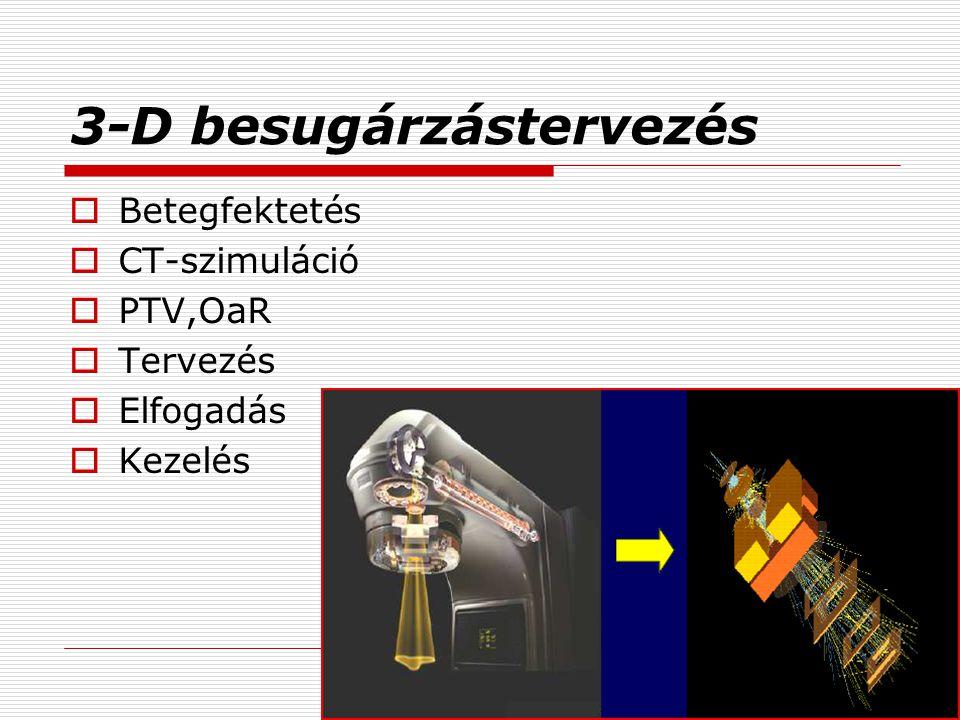 3-D besugárzástervezés