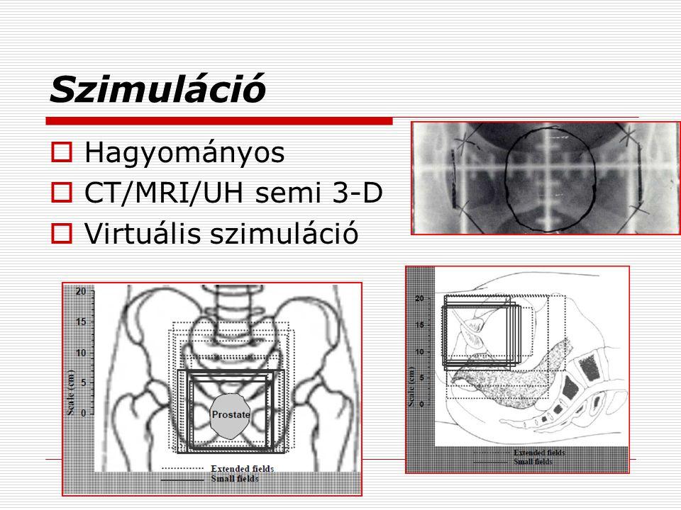 Szimuláció Hagyományos CT/MRI/UH semi 3-D Virtuális szimuláció