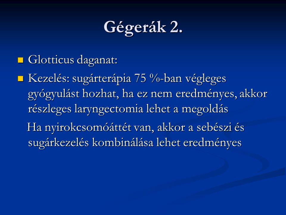 Gégerák 2. Glotticus daganat: