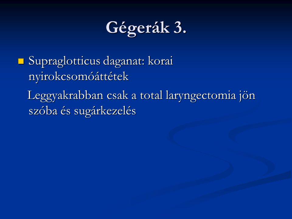 Gégerák 3. Supraglotticus daganat: korai nyirokcsomóáttétek