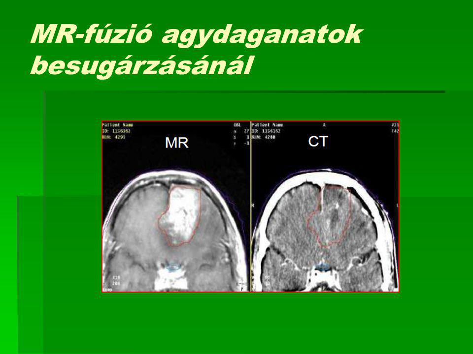 MR-fúzió agydaganatok besugárzásánál