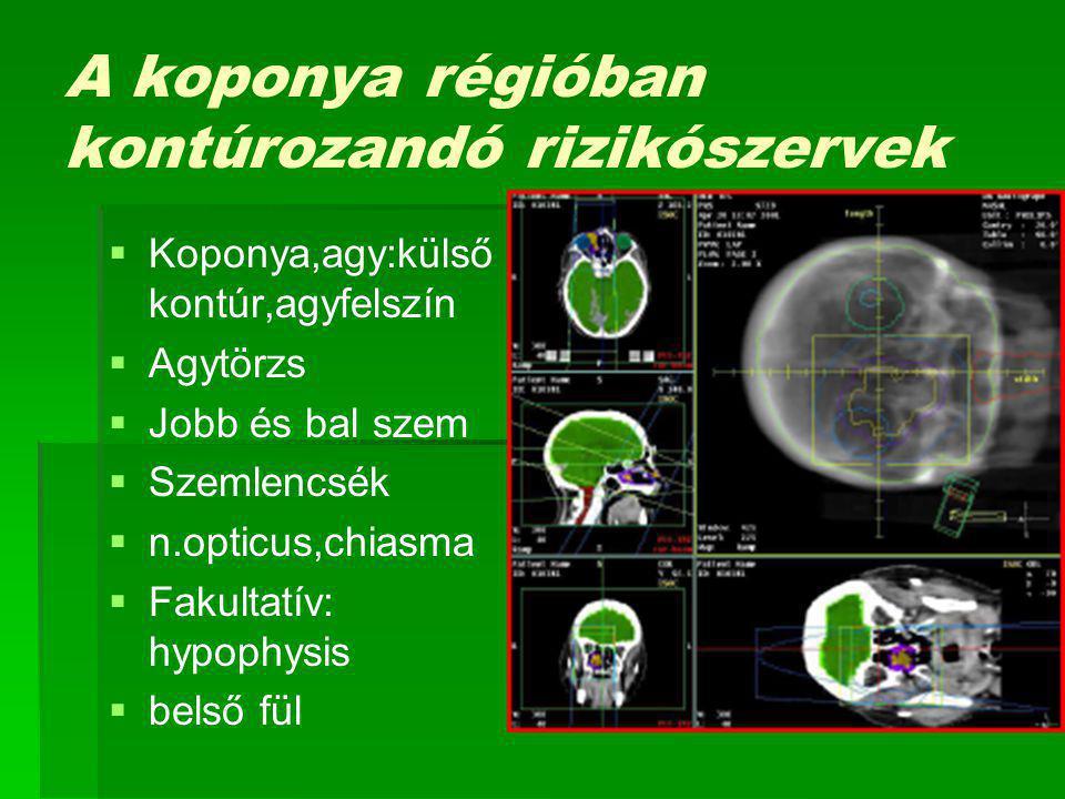 A koponya régióban kontúrozandó rizikószervek