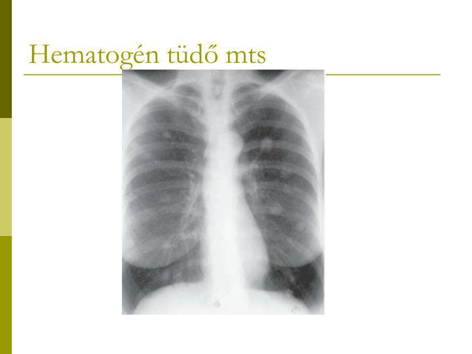 Hematogén tüdő mts 2476