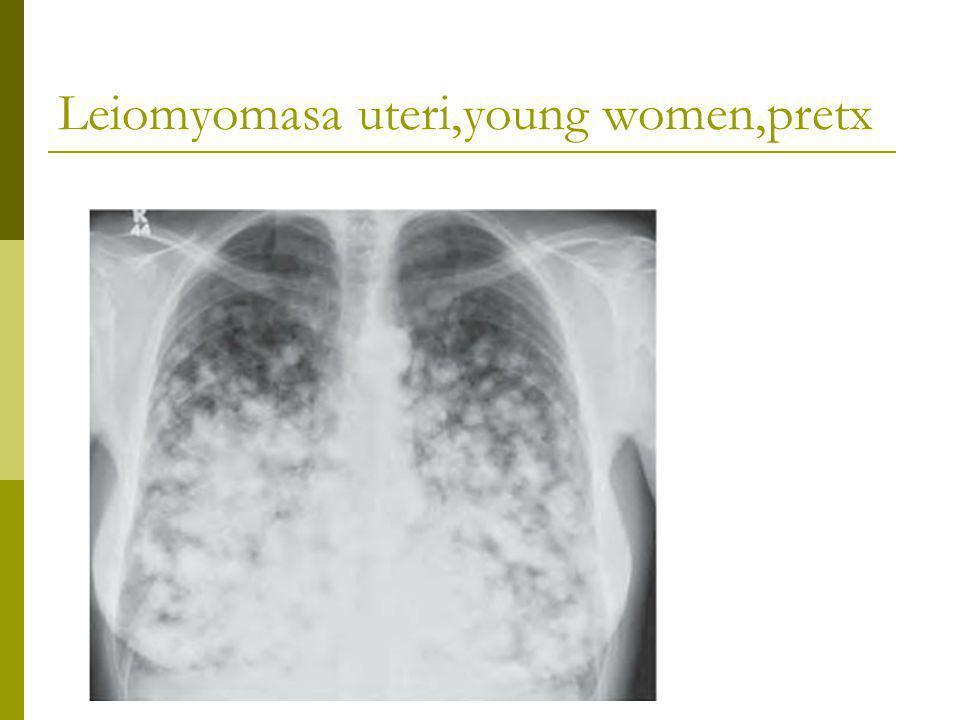 Leiomyomasa uteri,young women,pretx