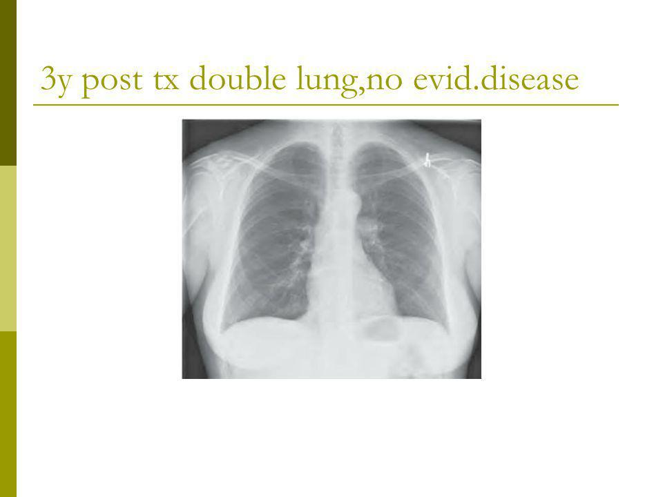 3y post tx double lung,no evid.disease