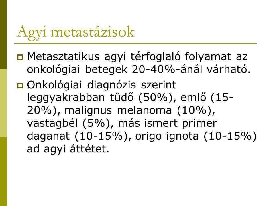 Agyi metastázisok Metasztatikus agyi térfoglaló folyamat az onkológiai betegek 20-40%-ánál várható.