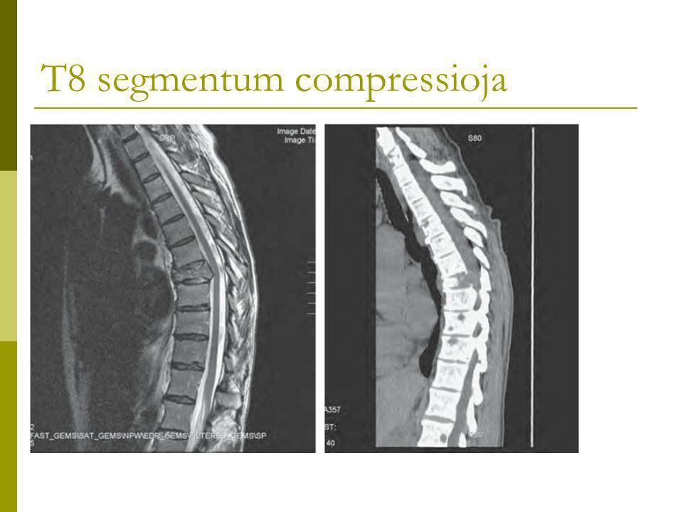 T8 segmentum compressioja